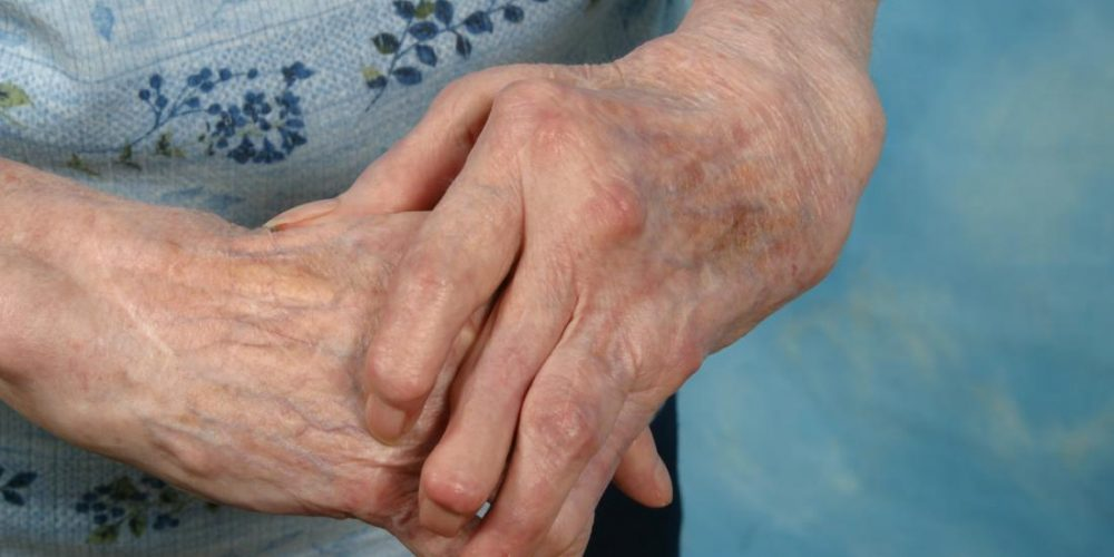 How do you manage arthritis in hands?