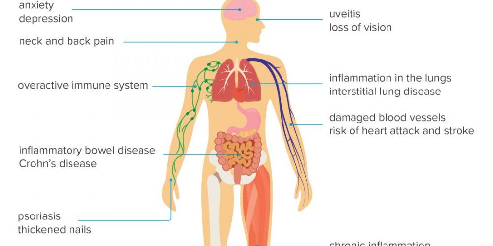 How does psoriatic arthritis affect the body?
