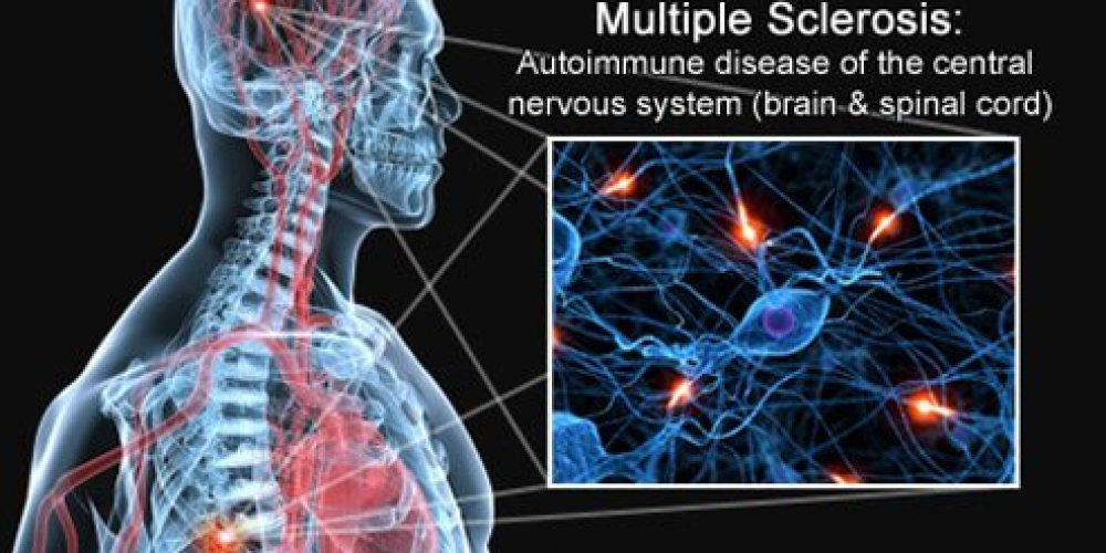 Multiple Sclerosis (MS) Early Warning Signs and Types