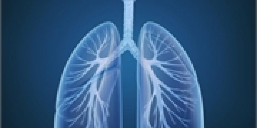 Obesity May Boost Effectiveness of a Lung Cancer Therapy