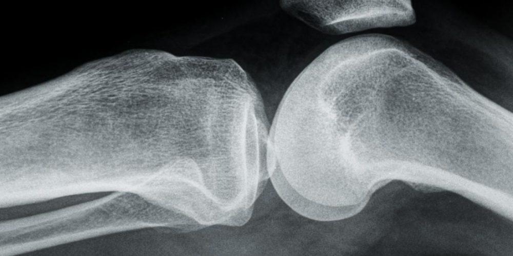 Osteoarthritis: Can an antioxidant offer protection?