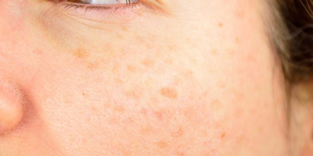 Scientists discover pathway to skin regeneration