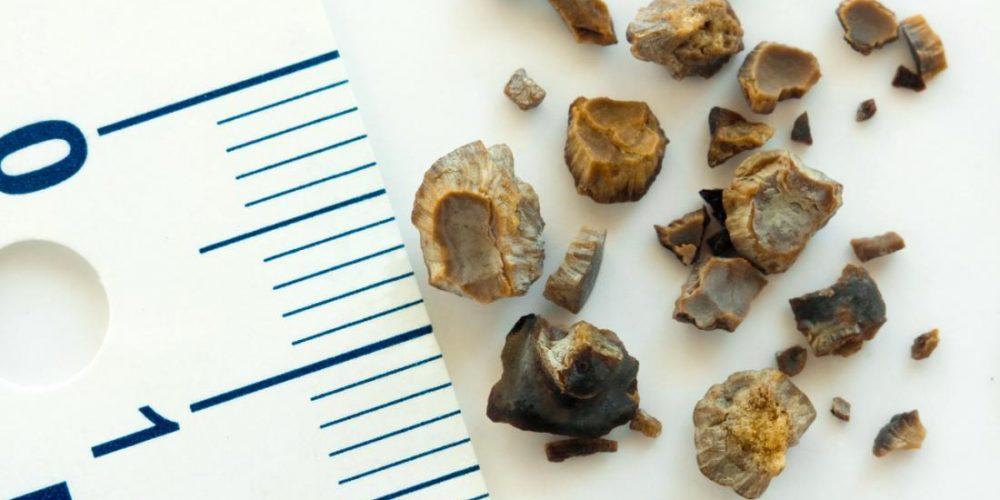 Trece remedios caseros y naturales para los cálculos renales