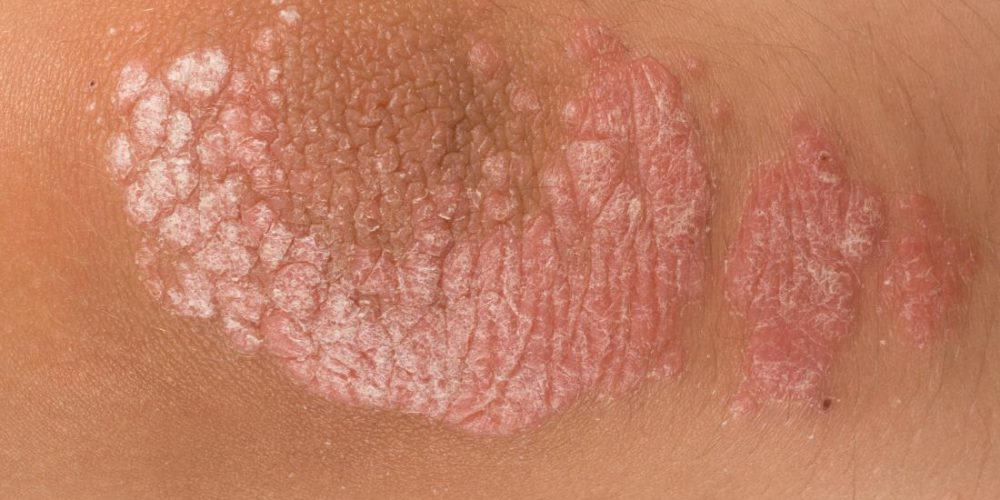 What are the signs and symptoms of psoriasis?