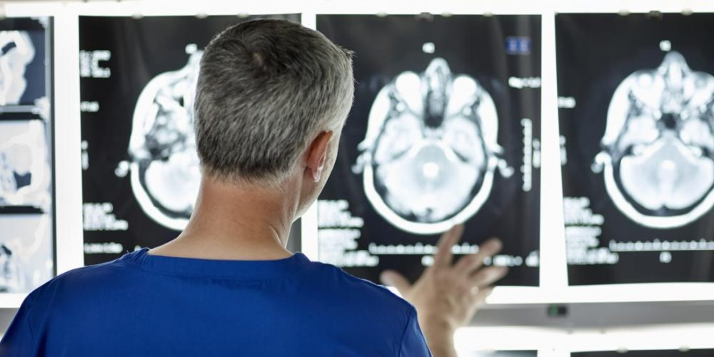 What causes Alzheimer's? Not toxic amyloid, new study suggests