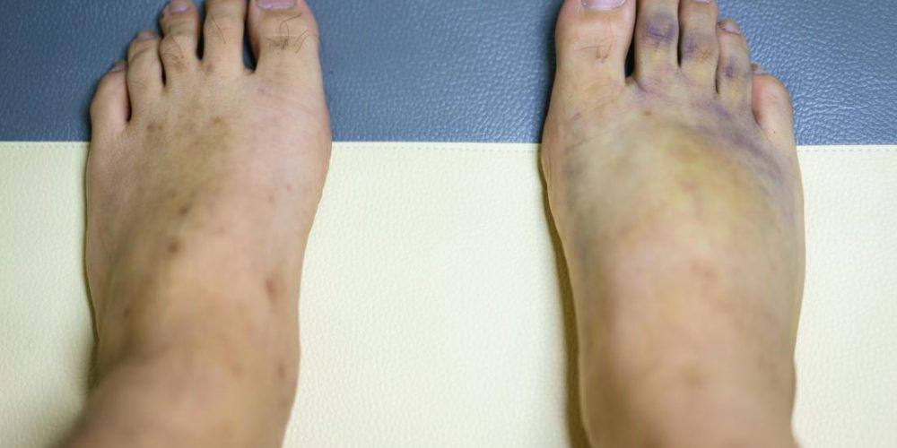 What causes purple feet?