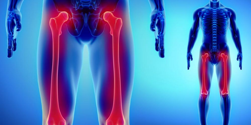 What is osteosarcoma?