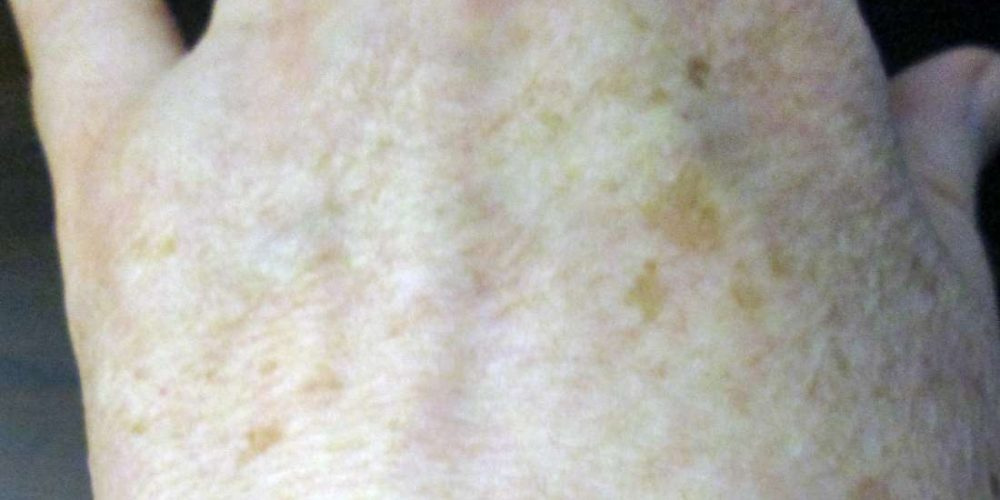 What to do about pigmentation