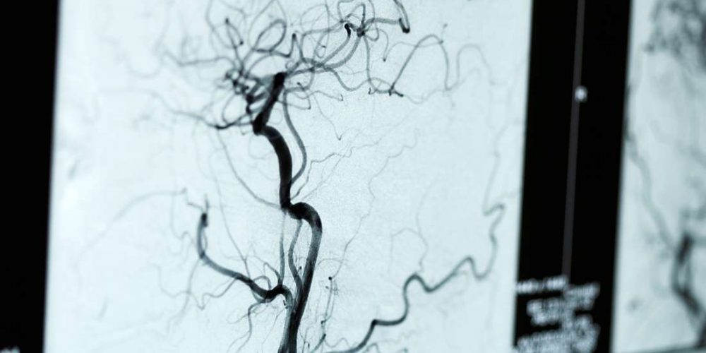 What to know about angiograms