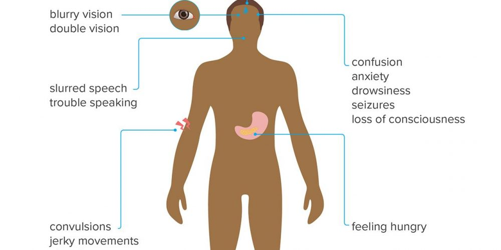 What to know about diabetic shock