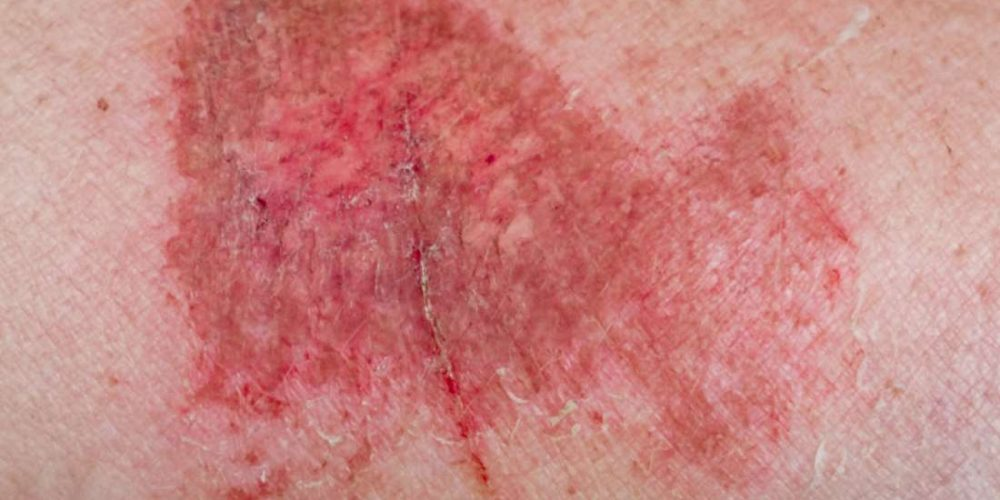 What to know about friction burns on the penis