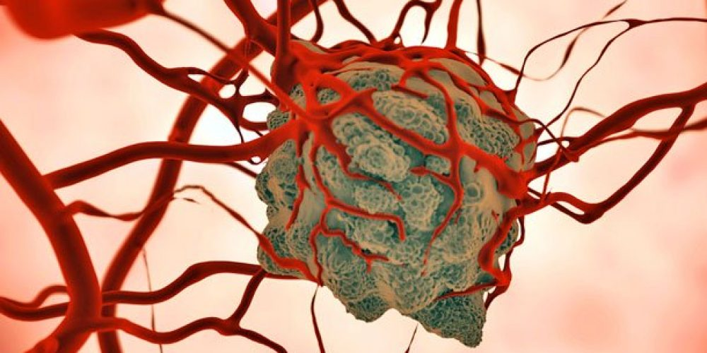 WHO Aims to Save 7 Million in Developing Countries From Cancer